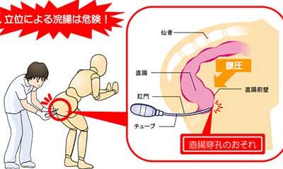 グリセリン浣腸による直腸穿孔の注意画像